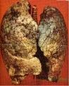 Les effets sur l'appareil respiratoire